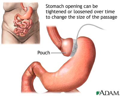 adjustable-gastric-banding